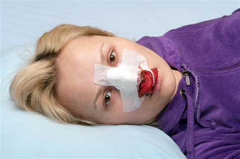 7 Secrets You Need To Know About Recovering From A Nose