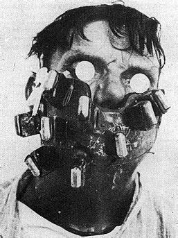 Mask for radium treatment for cancer of the face and neck